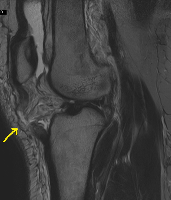 Acl Tendon Tear Acl Shows Tear as Associated