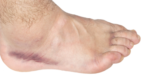 Why Does My Ankle Swell When I Drink Alcohol