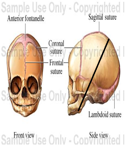 Fetal Skull Quiz Fetal Skull Changes in Labour