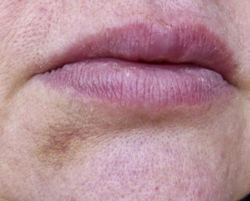 Bruise below lips