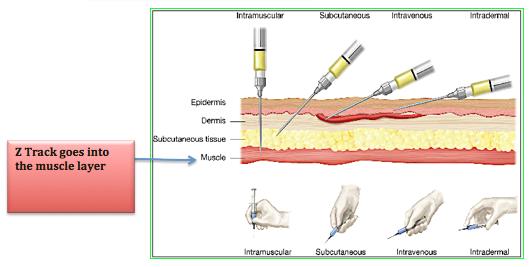 Iv Locations On Arm Blood Draw Sites On Arm ~ Elsavadorla