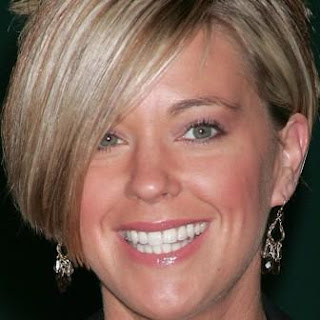 Kate Gosselin teeth before