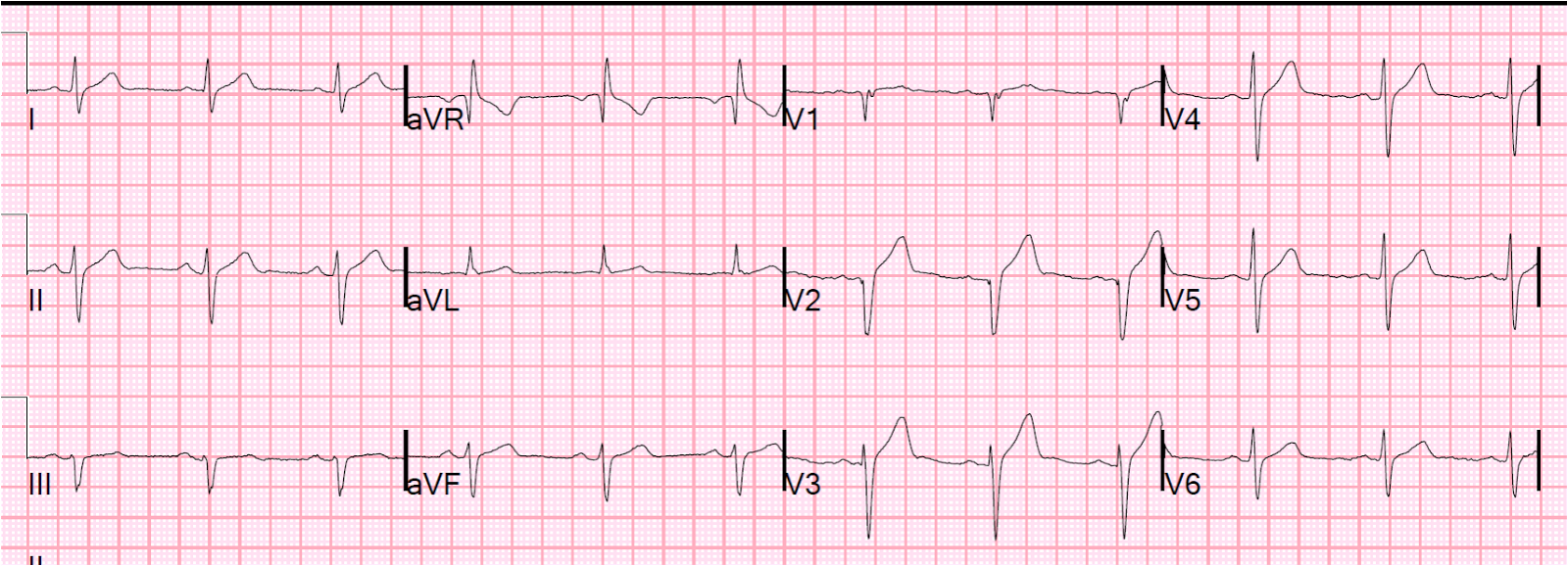 Dr. Smith's ECG Blog: 2012