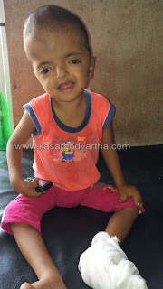 Endosulfan, hospital, Handicape, Child, Kasaragod, Kerala, Kerala News, International News, National News.