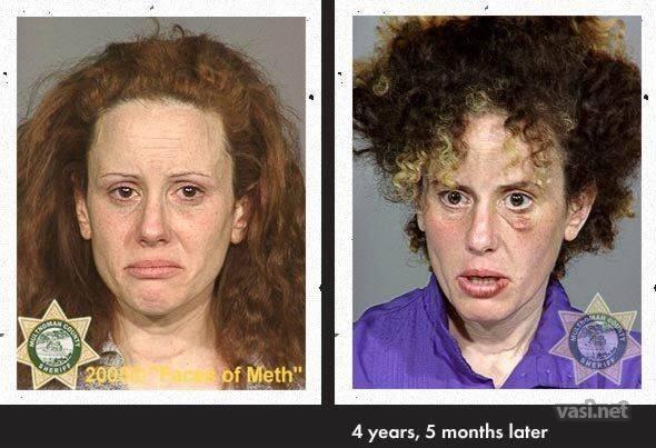 wajah ke 8 Wajah Para Pemakai Narkoba Sebelum Dan Sesudah Kecanduan