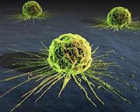 DCA Έλληνας καθηγητής ανακάλυψε το φάρμακο αντιμετώπισης του καρκίνου (Βίντεο)