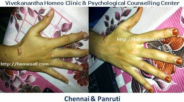 Chennai Specialty Homeopathy Treatment Clinic for Warts, Genital Warts, Velachery, Chennai, Tamil nadu, India, dr.sendhil kumar, panruti