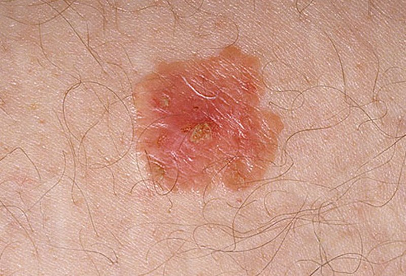 skin cancer melanoma pictures