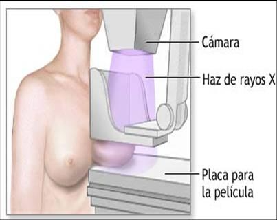 Bulto en la biopsia de mama