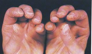 Polymyositis & Dermatmyositis