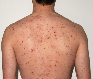 Chicken Pox Treatment - How To Get Rid Of Chicken Pox Quickly and Easily From Home