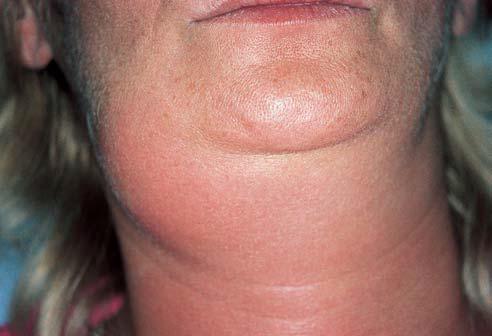 parotid swellings