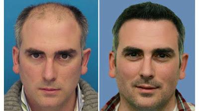 Fortschritt in der Haartransplantation