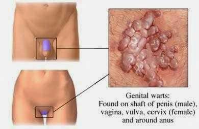 Penyakit Kutil Kemaluan Pria Dan Wanita