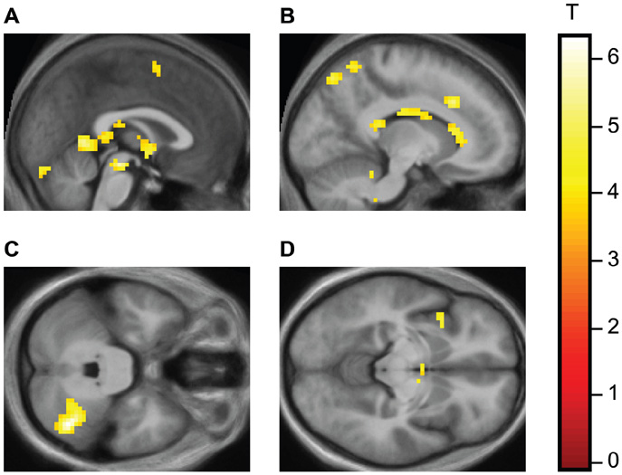 ... in straight and 6 in gay relationships) in their fMRI experiment.