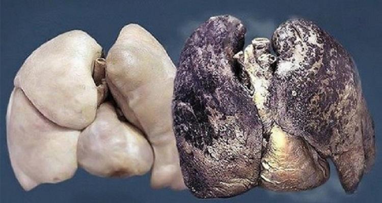 علماء يكتشفون سر بقاء رئة بعض المدخنين سليمة
