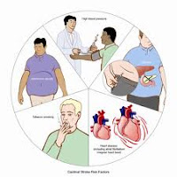 risk factors and prevention of stroke