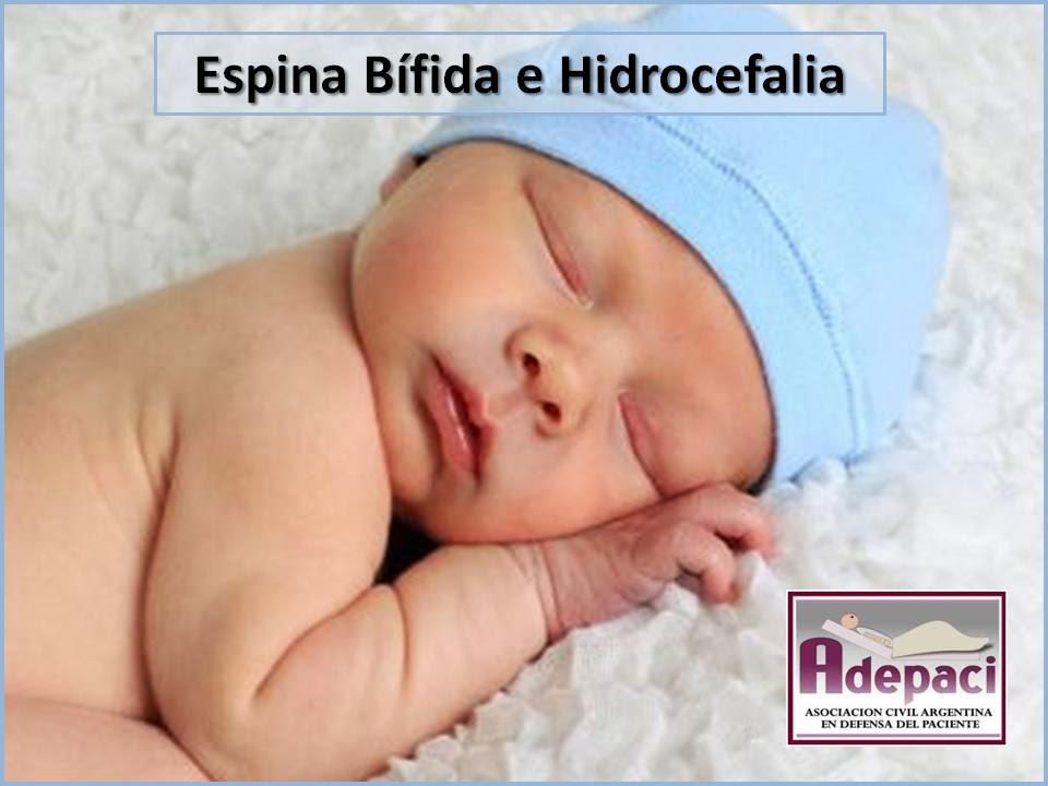 Espina Bífida e Hidrocefalia. Asociación de Pacientes | DERECHOS del ...