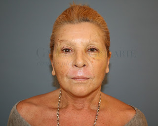 lifting_facial_estiramiento_facial_cirujano_plastico_madrid