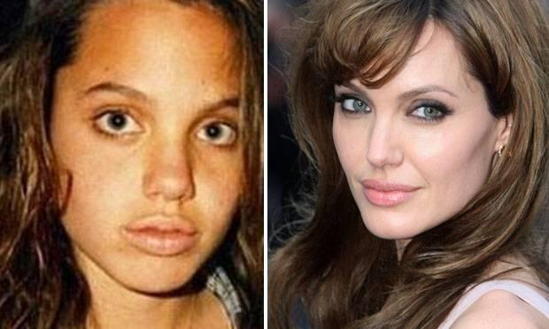 Famosos antes e depois da fama Home Fotos - Conta Mais