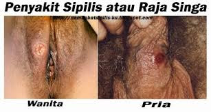 Gejala Penyakit Kelamin Sipilis