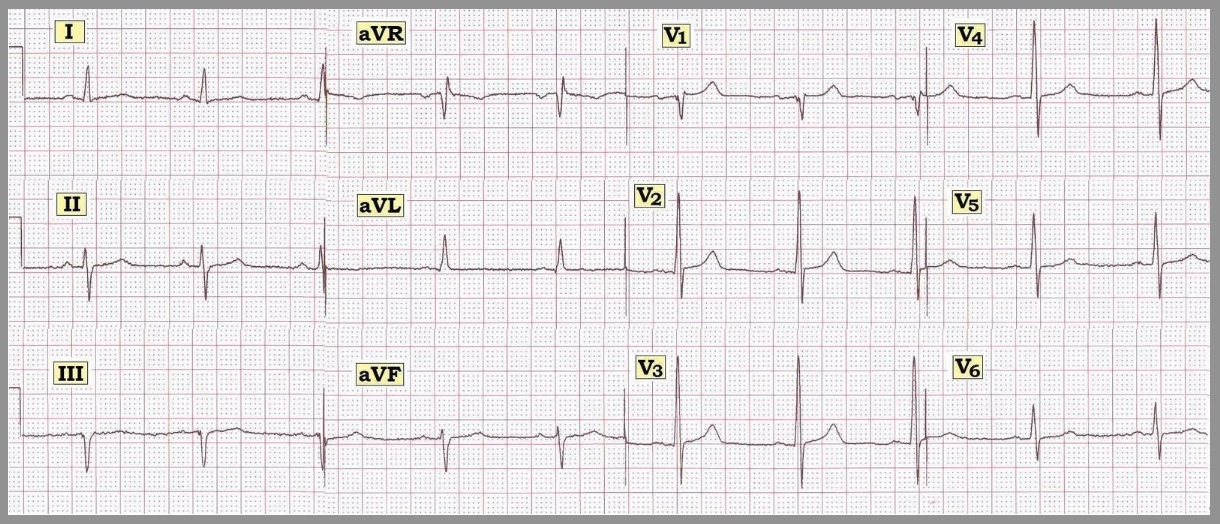 ECG Interpretation: ECG Interpretation Review #29 ...