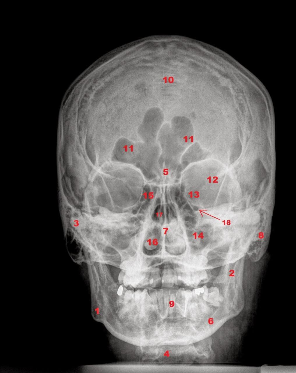 E-Anatomía Odontológica: Fwd: Radiografía frontal del cráneo. Grupo 6.