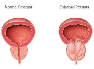 Cara Mengobati Pembesaran Prostat