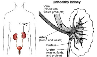 The Symptoms that indicate future Kidney Damage