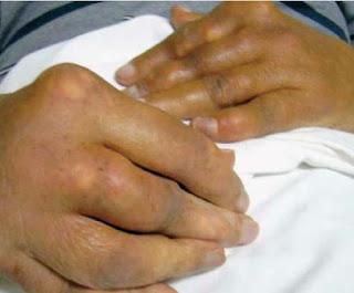 Mengenali Artritis Gout