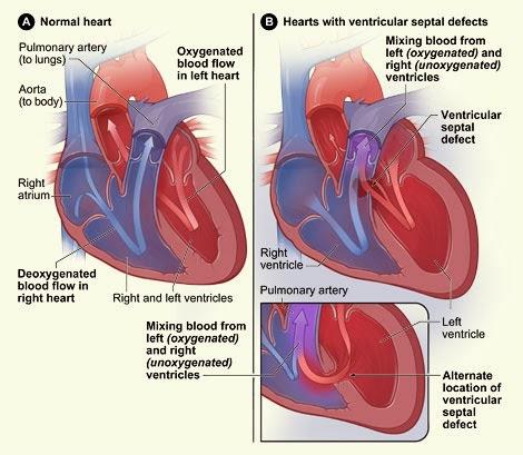 Obat Jantung Bocor