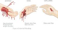 Pertolongan Pertama Pada Perdarahan