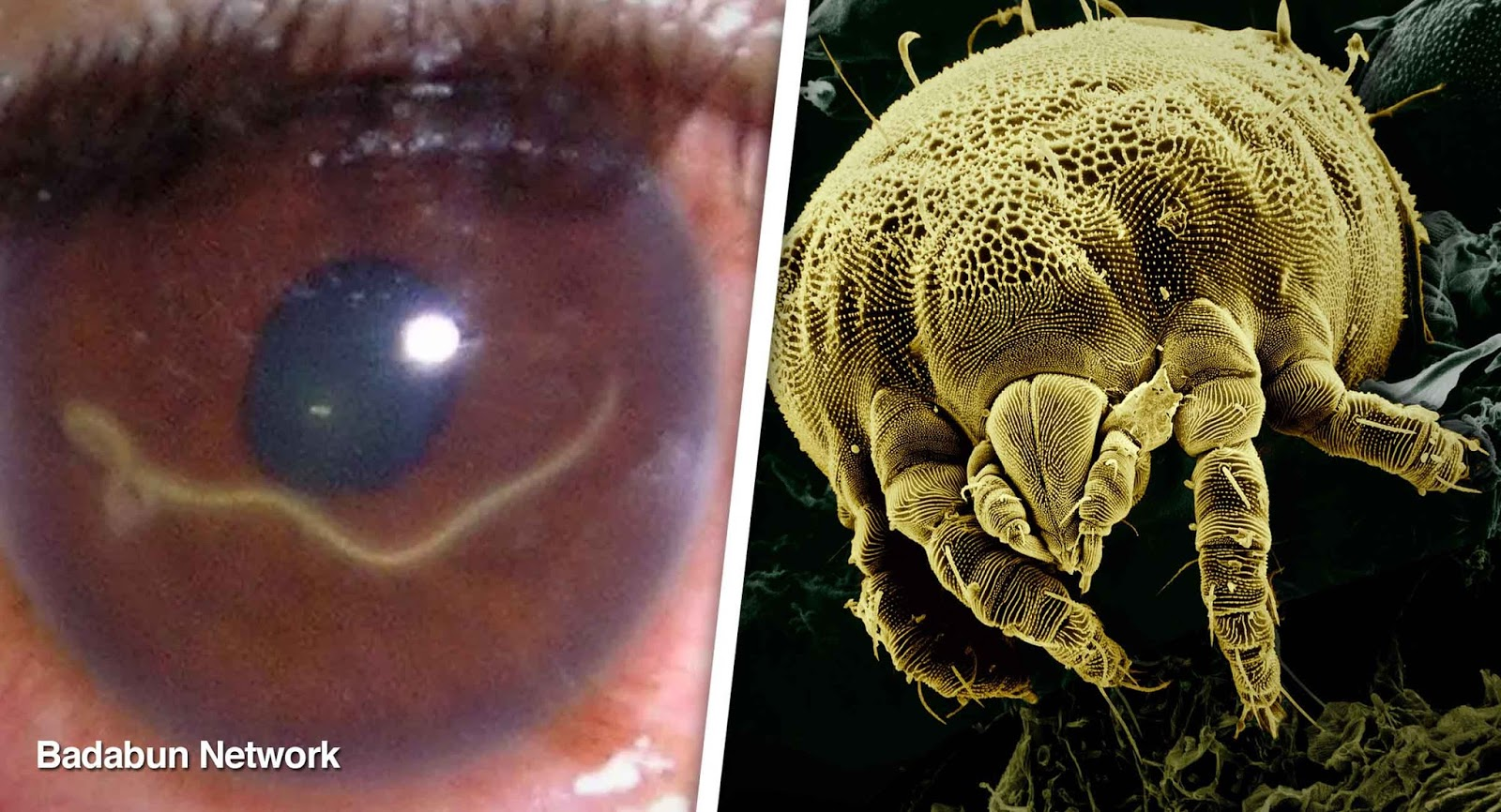 Blog para optimizar Badabun: 10 bichos que viven dentro del cuerpo ...