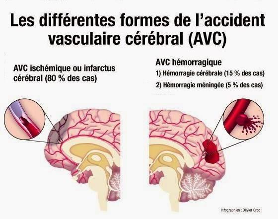 """Résultat de recherche d'images pour """"avc"""""""
