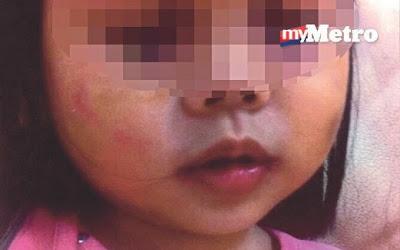 Kanak kanak 2 Tahun Cedera Didera Pengasuh FB