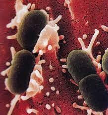 http://jusmanggisdaunsirsak.blogspot.com/2014/08/pengobatan-penyakit-infeksi-kandung.html