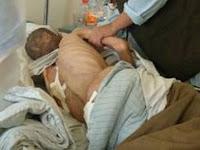Military Hospital Victim