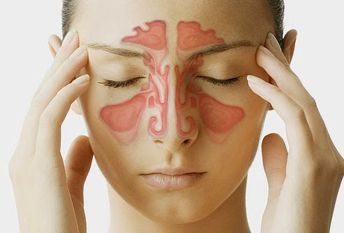 Cara Mengatasin Sinusitis