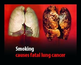 epekto ng sigarilyo