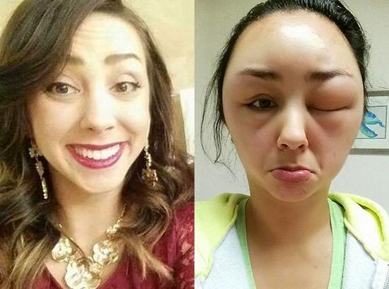 Akibat Pewarna Rambut, Wanita Cantik Bertukar Menjadi Raksasa