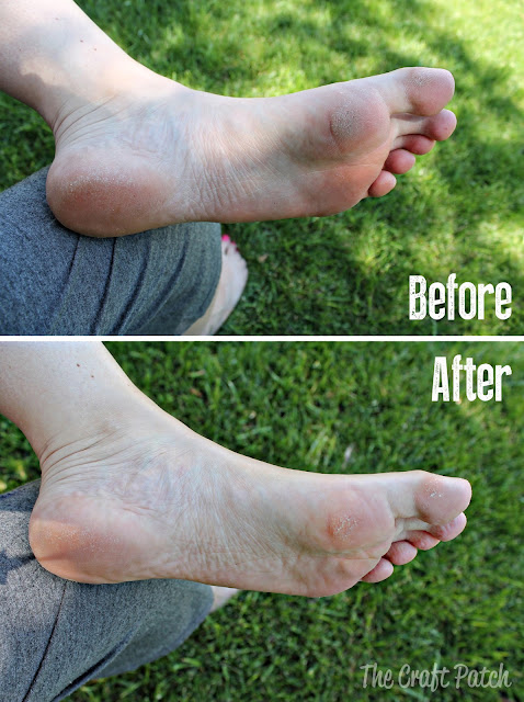 how to get dead skin off my feet