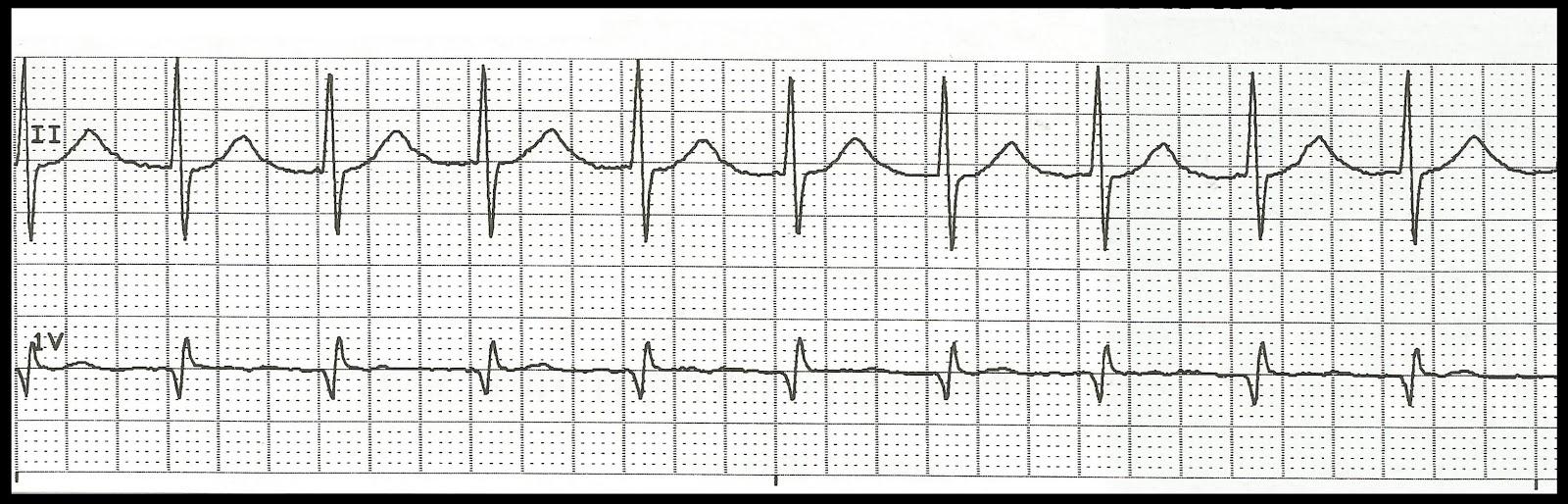 Float Nurse: Basic EKG Rhythm Test 08