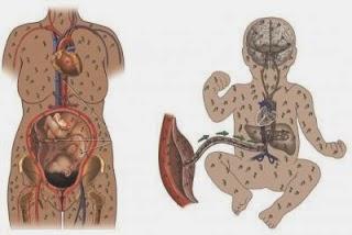 sifilis penyakit sifilis