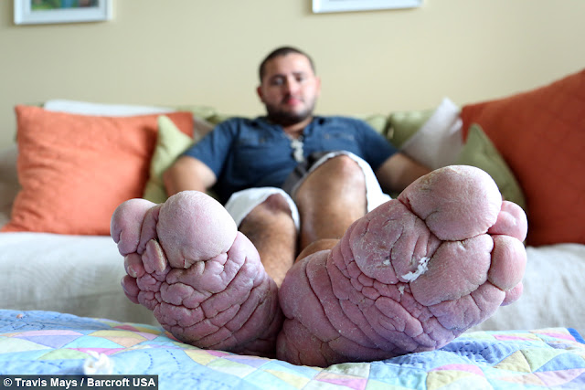 Man With The Largest Feet In The World Wants Them ...