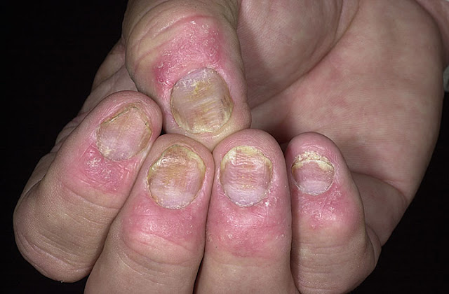 erythrodermic psoriasis natural treatment
