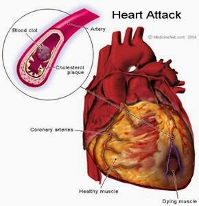 5 Ways To Avoid Heart Attack And Stroke
