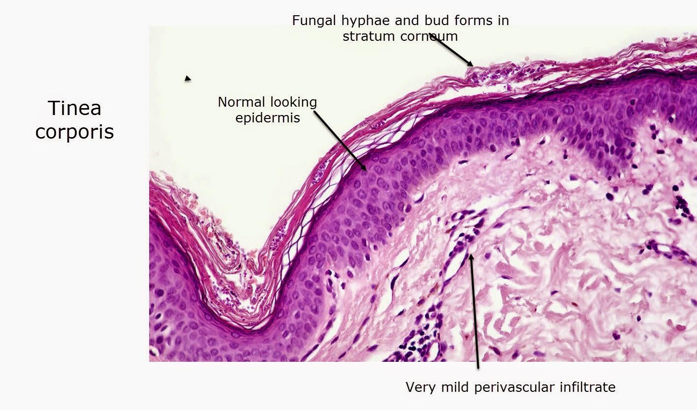 dermatopathology made simple - inflammatory: psoriasiform reaction, Cephalic Vein