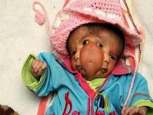 ولادة طفلة بوجهين في الهند..سبحان الله