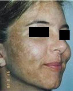 zarraz paramedical, rawatan jerawat terbaik, tips menghilangkan jerawat, flek pada wajah, tips bekas jerawat, cara menghilangkan jerawat, rawatan maslah pigmentasi, melasma, jeragat