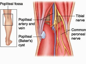 What Is A Popliteal Cyst In The Knee